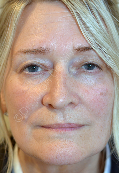 Nose Re-Shaping Before 75