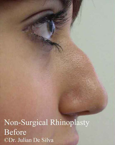 Non-Surgical Treatments Before 6