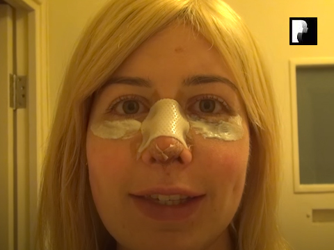 Revision Rhinoplasty Video Diary Day 3 after surgery