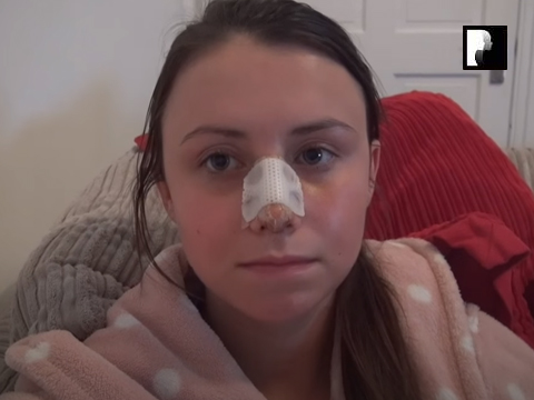 Watch Video: Rhinoplasty & Septoplasty Video Diary Day 4 After Surgery