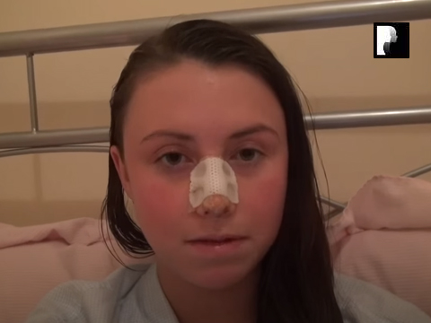 Watch Video: Rhinoplasty & Septoplasty Video Diary Day 6 After Surgery