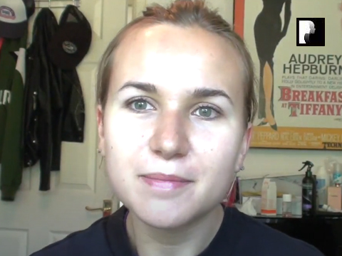 Rhinoplasty Video Diary –Day 9 After Surgery, 10 of 12