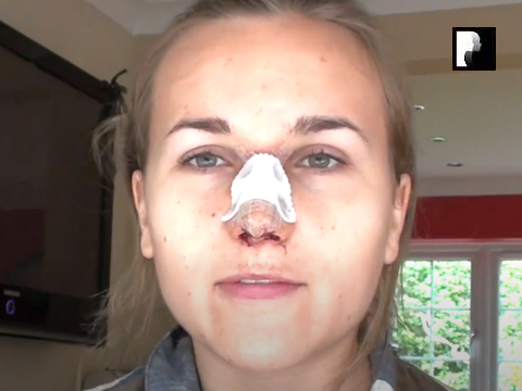 Rhinoplasty Video Diary –Same Day of Surgery, 2 of 12