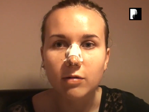 Rhinoplasty Video Diary –Day 3 After Surgery, 5 of 12