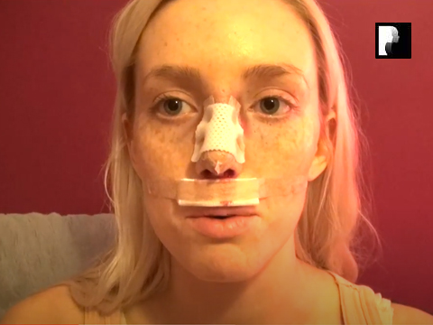 Closed Rhinoplasty Video Diary- 2 Hours After Surgery, 1 of 10