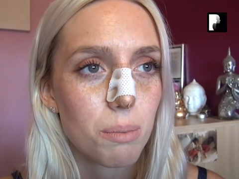 Closed Rhinoplasty Video Diary –Day 5 After Surgery, 7 of 10