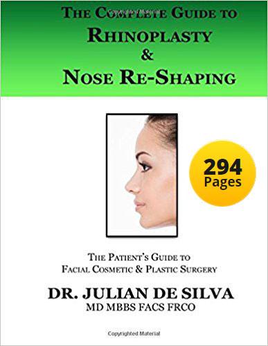 Dr De Silva's Complete Guide to Rhinoplasty