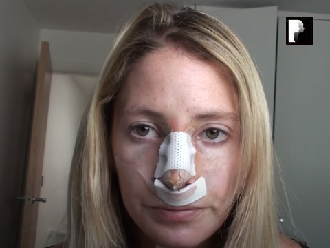 Watch Video: Rhinoplasty & Chin Implant Video Diary -Day 2 After Surgery