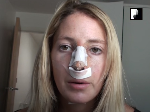 Watch Video: Rhinoplasty and Chin Implant Video Diary -Day 2 After Surgery