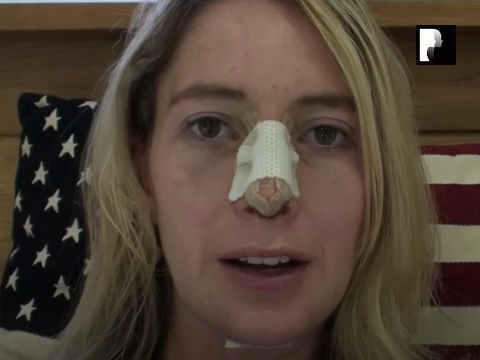 Watch Video: Rhinoplasty & Chin Implant Video Diary -Day 3 After Surgery