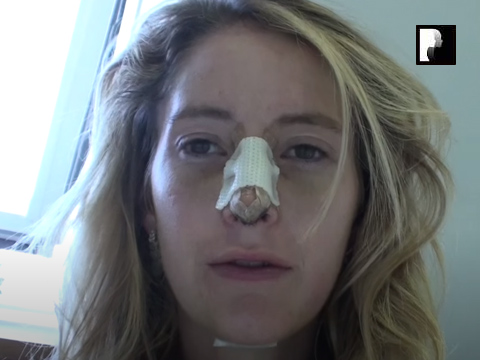 Watch Video: Rhinoplasty & Chin Implant Video Diary Day 5 After Surgery