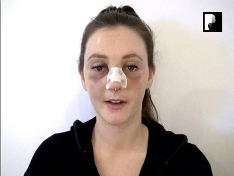 Rhinoplasty Video Diary –Day of surgery, 2 of 18
