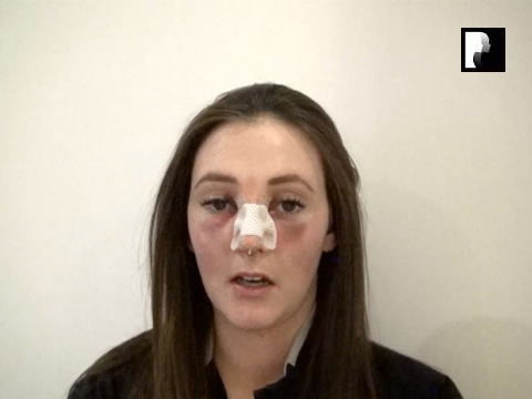 Rhinoplasty Video Diary –Day 1 After surgery, 3 of 18