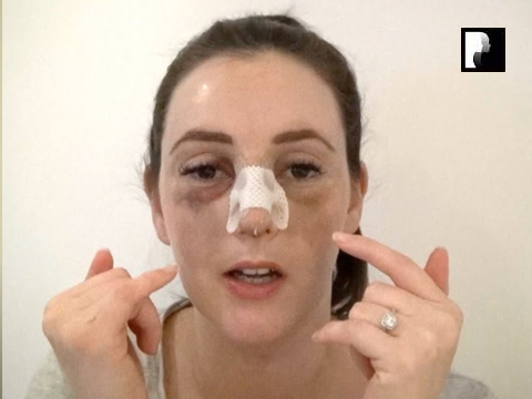 Rhinoplasty Video Diary –Day 3 After surgery, 5 of 18