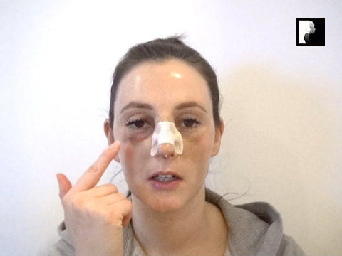 Rhinoplasty Video Diary –Day 4 After surgery, 6 of 18