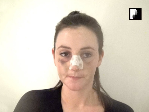 Rhinoplasty Video Diary –Day 5 After surgery, 7 of 18