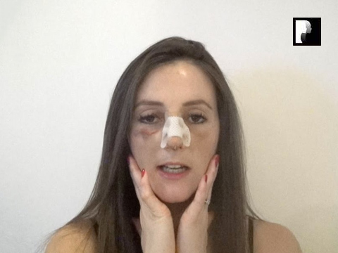 Rhinoplasty Video Diary –Day 6 After surgery, 8 of 18