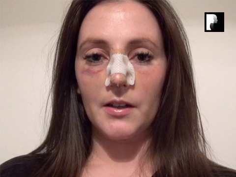 Rhinoplasty Video Diary –Day 7 After surgery, 9 of 18