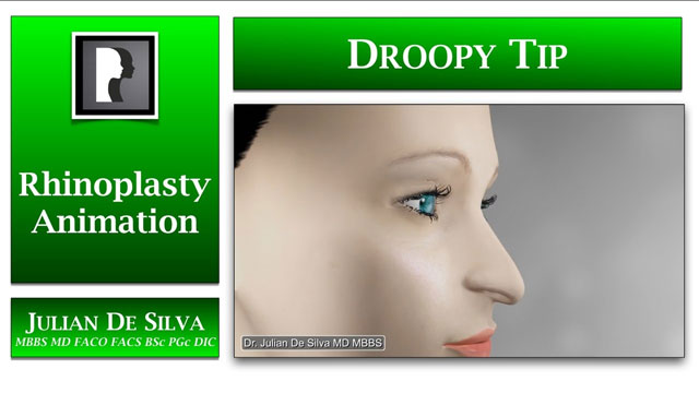 Watch Video: Rhinoplasty Animation How can a Droopy Nasal Tip be lifted?