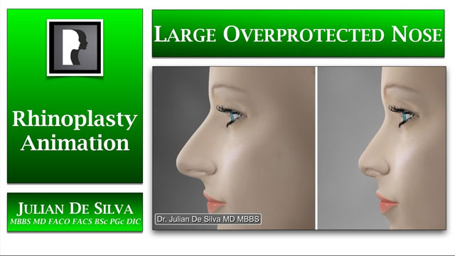 Watch Video: Rhinoplasty Animation - How can a Large Over-Projected nose be made