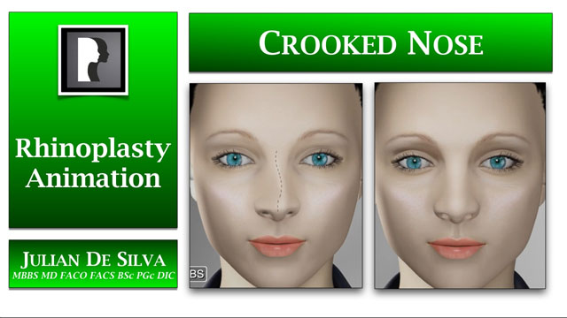 Watch Video: Rhinoplasty Animation - Rhinoplasty Animation - How can a Crooked or asymmetrical nose be straightened?