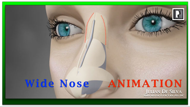 Watch Video: Rhinoplasty Animation - How can a Wide nose be narrowed?