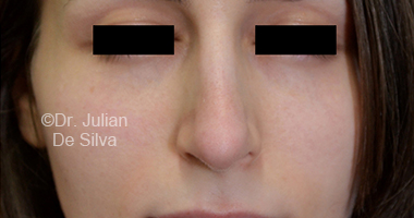 Nose Re-Shaping After 18