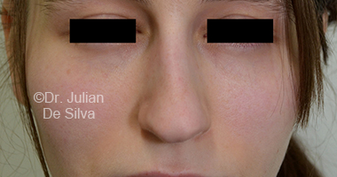Nose Re-Shaping Before 18