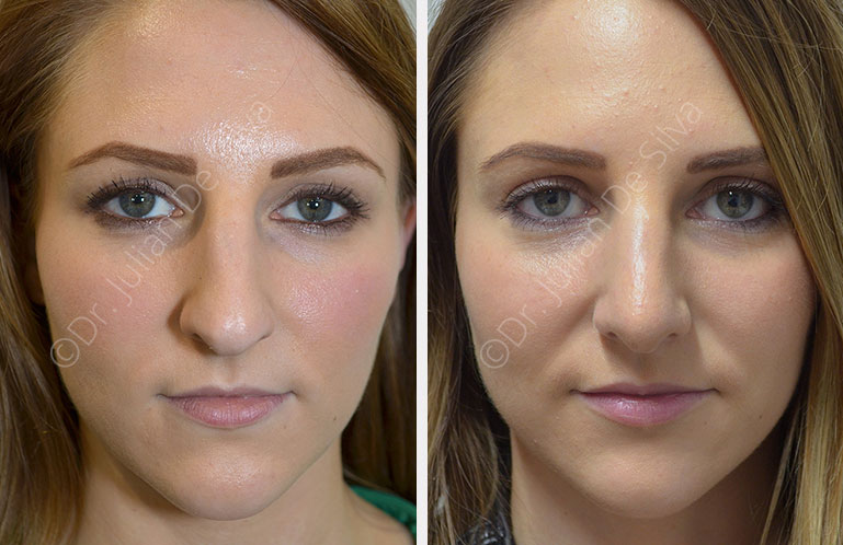 Woman's face, before and after Sedation & Rhinoplasty, front view