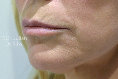 Skin & Laser Resurfacing Before 1