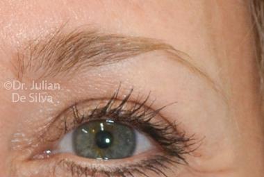 Skin & Laser Resurfacing After 2