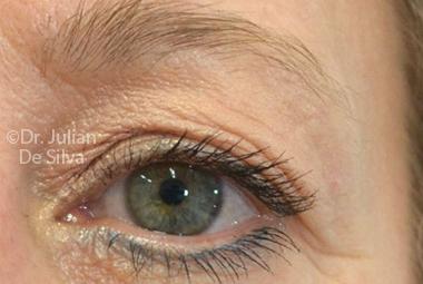 Skin & Laser Resurfacing Before 2