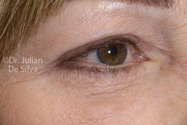 Skin & Laser Resurfacing After 4