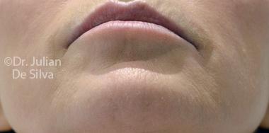 Skin & Laser Resurfacing Before 5