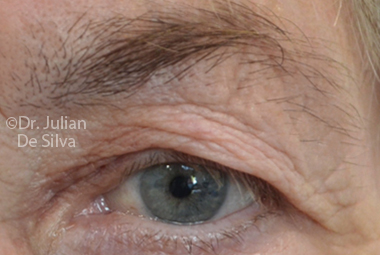 Skin & Laser Resurfacing Before 6