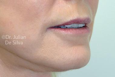 Skin & Laser Resurfacing After 7