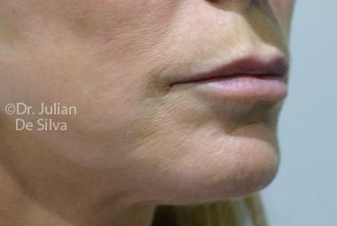 Skin & Laser Resurfacing Before 7