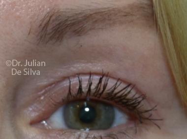 Skin & Laser Resurfacing After 8
