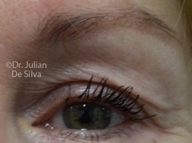 Skin & Laser Resurfacing Before 8