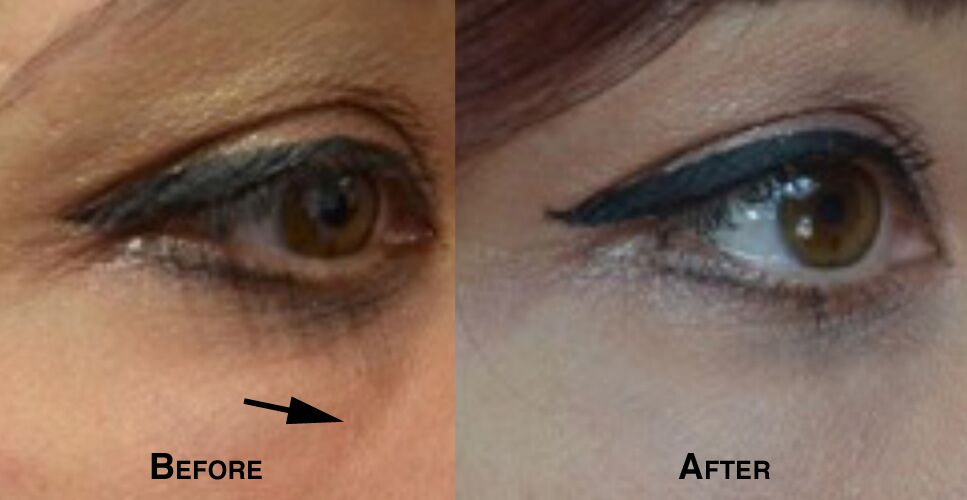 Woman's face, defore and after Lower Eyelid lift, parient 3