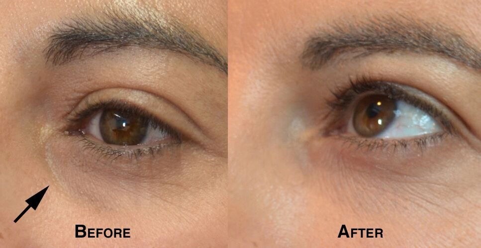 Woman's face, defore and after Lower Eyelid lift, parient 2