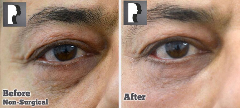Male face, defore and after Lower Eyelid lift