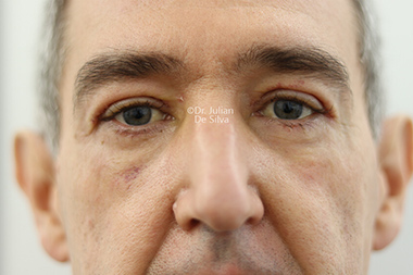 Male face, after Eyelid Surgery (Blepharoplasty) Treatment, front view, patient 136