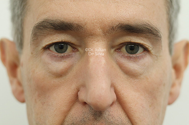 Male face, before Eyelid Surgery (Blepharoplasty) Treatment, front view, patient 136