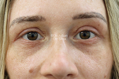 Woman's face, after Eyelid Surgery (Blepharoplasty) Treatment, front view, patient 135
