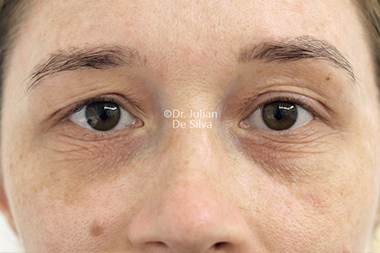Woman's face, before Eyelid Surgery (Blepharoplasty) Treatment, front view, patient 135