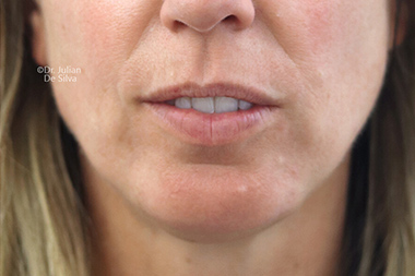 Female face, after Chin Implants and Reduction, front view, patient 29