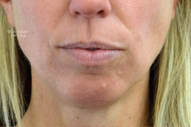 Female face, before Chin Implants and Reduction, frontview, patient 29