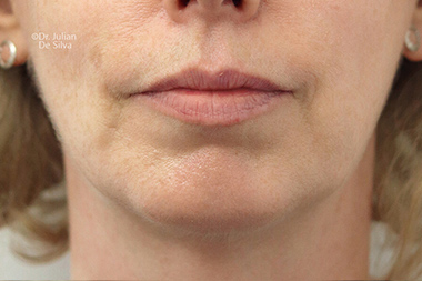 Female face, after Chin Implants and Reduction, front view, patient 30