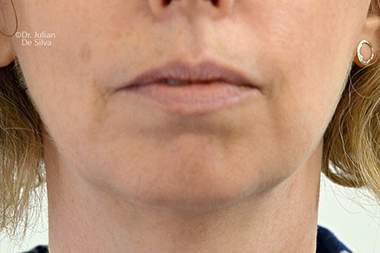 Female face, before Chin Implants and Reduction, frontview, patient 30